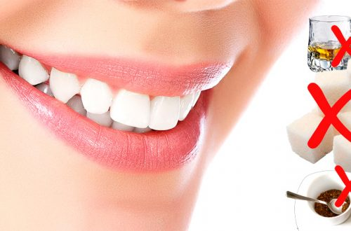Продукты, вредящие зубам